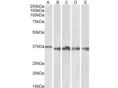 Aurora Kinase B Antibody
