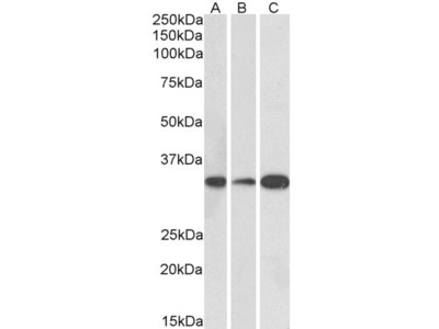 MAPRE3 Antibody