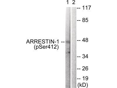 Arrestin 1 (phospho Ser412) Antibody
