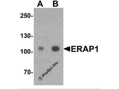 ERAP1 Antibody