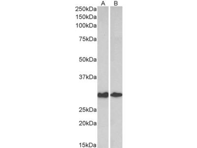 Galectin 3 Antibody