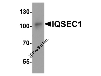 IQSEC1 Antibody