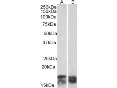 CD3-ZETA / CD247 Antibody