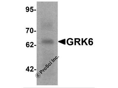 GRK6 Antibody