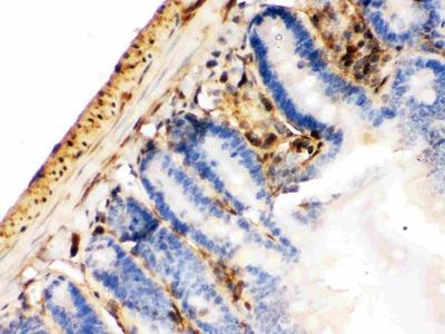 Anti-Galectin 1/LGALS1 Picoband Antibody