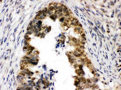 Anti-UHRF1 Picoband Antibody