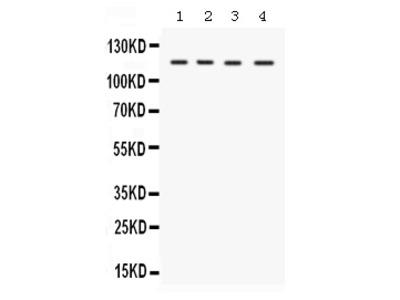 Anti-E1 Ubiquitin Activating Enzyme/UBA1 Picoband Antibody
