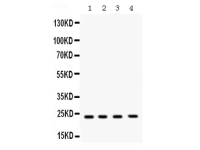 Anti-RAB7/RAB7A Picoband Antibody
