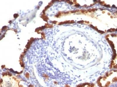 Cytokeratin 7 Antibody (KRT7/760 + KRT7/903) - IHC-Prediluted