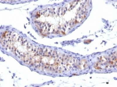 Prolactin R Antibody (PRLR /742)