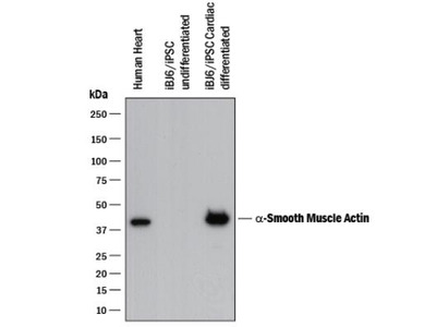 Great Smooth Muscle Actin Antibody