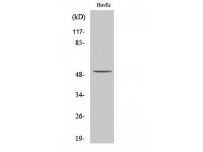 ALDH3B1 Antibody