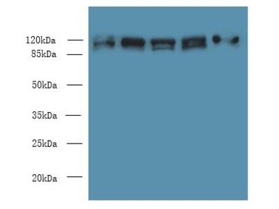 COPB1 / Beta-COP Antibody