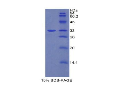 AHR Protein