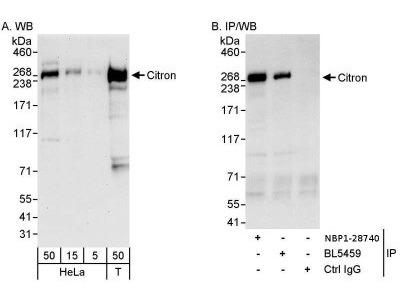 Rabbit Polyclonal Citron Kinase Antibody