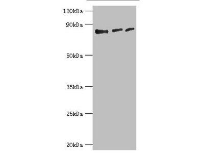 Rabbit anti-human Histone-lysine N-methyltransferase EZH1 polyclonal Antibody(EZH1)