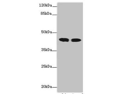 ACADL Antibody