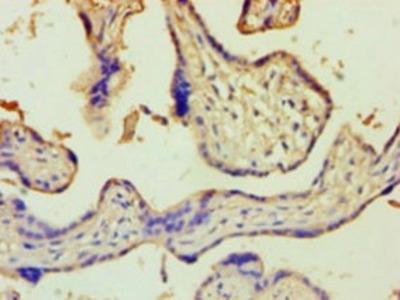 Rabbit anti-human Zinc finger Ran-binding domain-containing protein 2 polyclonal Antibody