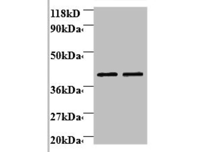 Rabbit anti-human Beta-1,4-galactosyltransferase 3 polyclonal Antibody