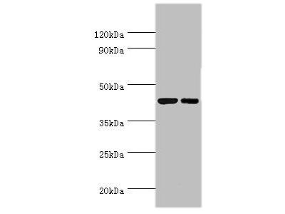 Rabbit anti-human Cyclic AMP-responsive element-binding protein 3 polyclonal Antibody(CREB3)