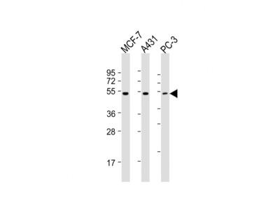 PPP2R5E Antibody (C-term)
