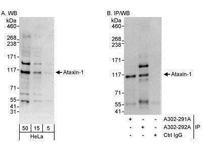 Ataxin 1 Antibody