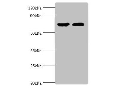 CROT Antibody