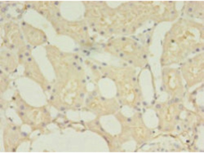 Rabbit anti-human Collectrin polyclonal Antibody(TMEM27)