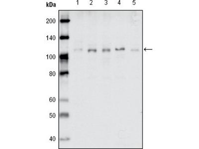 EphB1 Antibody (5F10A4)
