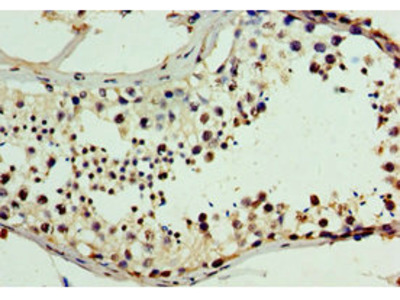 CHD2 Antibody