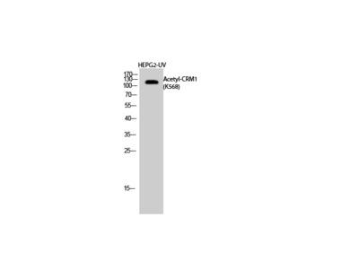 Acetyl-CRM1 (K568) Polyclonal Antibody