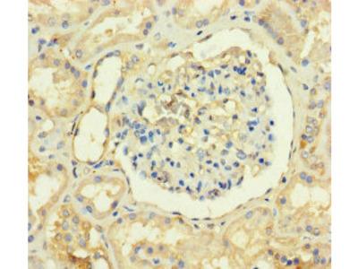 TMEM82 Antibody