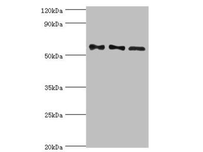 Rabbit anti-human Serine/threonine-protein phosphatase 2B catalytic subunit gamma isoform polyclonal Antibody(PPP3CC)