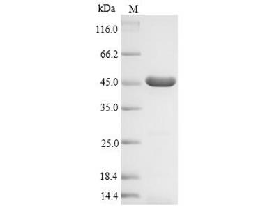 Recombinant Escherichia coli Beta-lactamase TEM