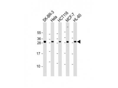 NAA10 Antibody (Center)