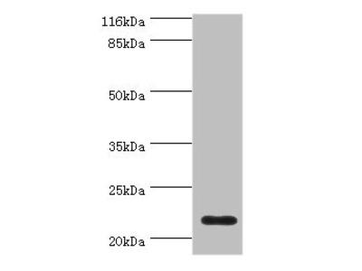Rabbit anti-human Complement component C8 gamma chain polyclonal Antibody