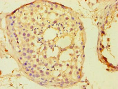 Rabbit anti-human Protein boule-like polyclonal Antibody(BOLL)