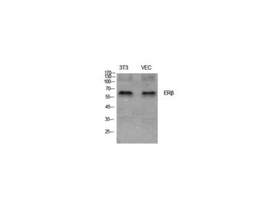 ERbeta Polyclonal Antibody