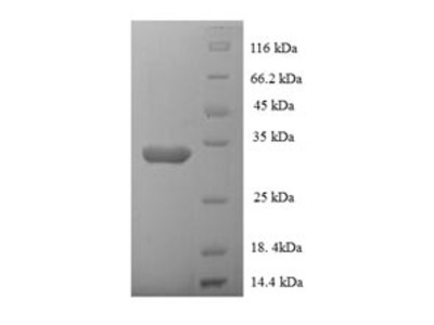 Recombinant Human N-alpha-acetyltransferase 38, NatC auxiliary subunit