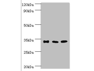 Rabbit anti-human Sulfotransferase 1A3 polyclonal Antibody(SULT1A3)