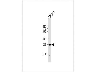 H1FNT Antibody (N-Term)