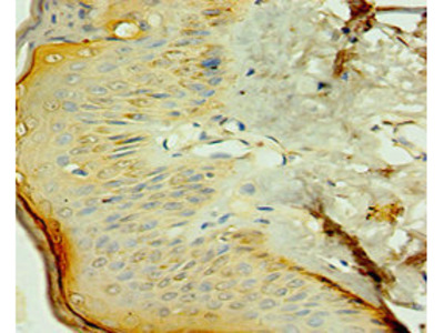 Rabbit anti-human Nuclear receptor subfamily 2 group C member 2 polyclonal Antibody(NR2C2)