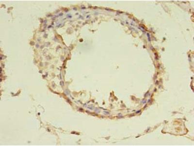 TUBA1A Antibody