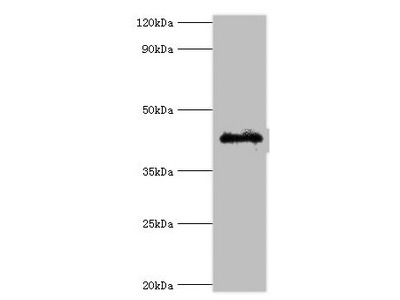 Rabbit anti-human Gap junction alpha-1 protein polyclonal Antibody(GJA1)