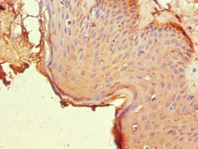 Rabbit anti-human Nuclear receptor subfamily 2 group C member 1 polyclonal Antibody(NR2C1)