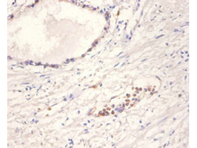 Rabbit anti-human Neurotrophin-4 polyclonal Antibody