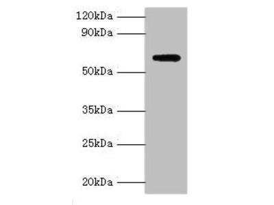 Rabbit anti-human Anti-Muellerian hormone type-2 receptor polyclonal Antibody(AMHR2)