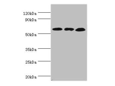 Rabbit anti-human Glutamate dehydrogenase 2, mitochondrial polyclonal Antibody(GLUD2)
