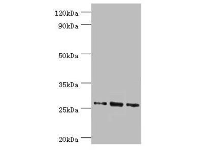 Rabbit anti-human Azurocidin polyclonal Antibody(AZU1)