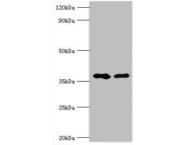 Rabbit anti-human Methylglutaconyl-CoA hydratase, mitochondrial polyclonal Antibody(AUH)